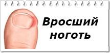 Удобное средство от грибка ногтей