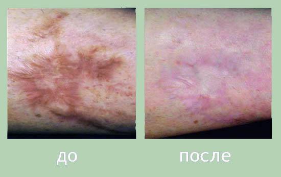 udalenie-shramov-intimnaya-hirurgiya